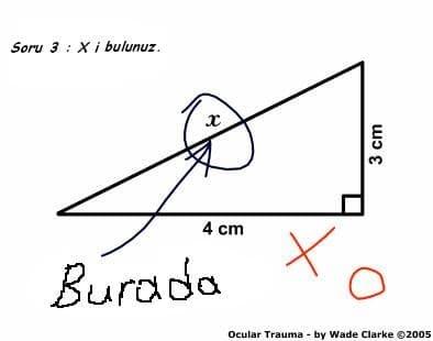 Geometri sorusu ve komik cevapları